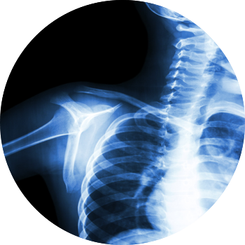 shoulder X-ray image tyler welch md